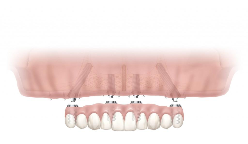 implant illustration front